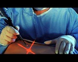 cirugia-laser1