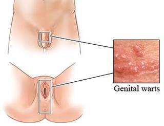 verrugas-genitales-tratamiento-natural-sintomas-virus-papiloma